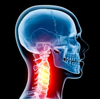 Skeleton Neck Pain